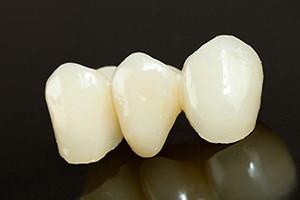 dental-bridge-sydney